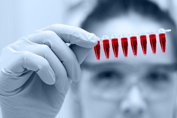 Alle wichtigen Infos rund um den Bluttest