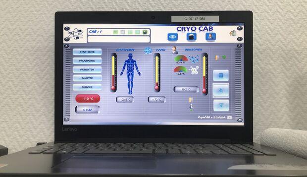 Datenanalyse bei der Kryotherapie