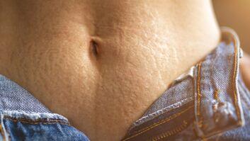 Dehnungsstreifen am Bauch sind weit verbreitet