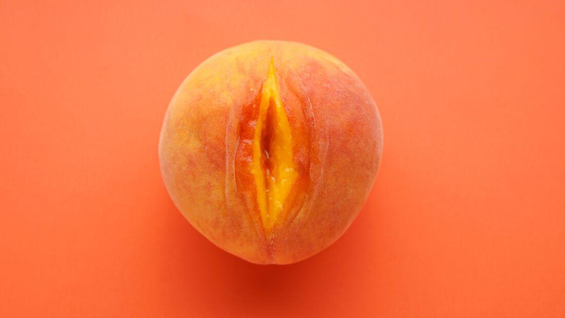 Die Ursache für eine geschwollenen Vagina kann eine Bartholiniti-Zyste sein.