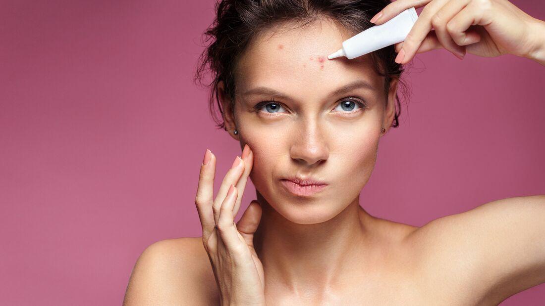 Die besten Tipps gegen Akne