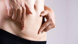 Eine Kaiserschnittnarbe braucht etwa ein Jahr um zu verblassen