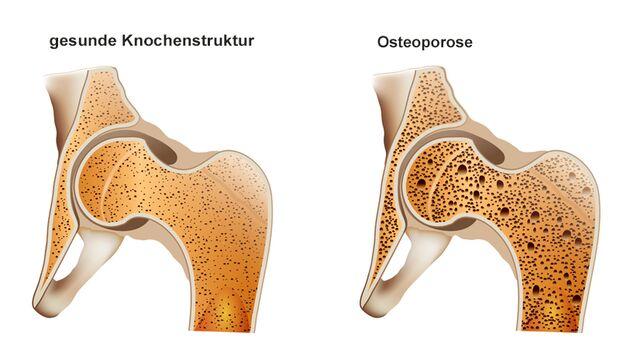 Ist ein zu hoher Milchkonsum wirklich eine Ursache von Osteoporose?