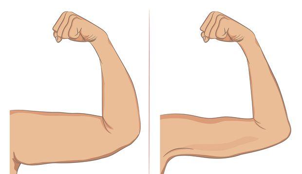 Mit Armtraining gezielt gegen Winkearme