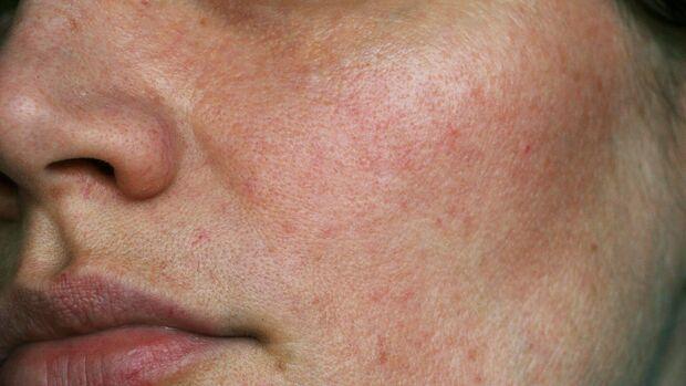 Rosazea-Pflege: Das hilft bei roter Haut