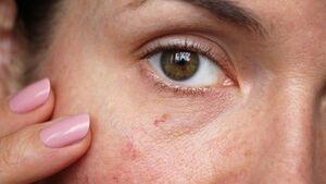 Ständig rote Haut? Pflege-Tipps für Rosazea